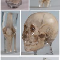 德国Erler Zimmer天然骨骼X-Ray训练模体