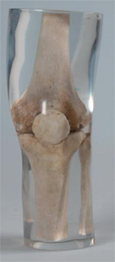 Erler Zimmer天然骨骼模体,Erler Zimmer膝盖模体