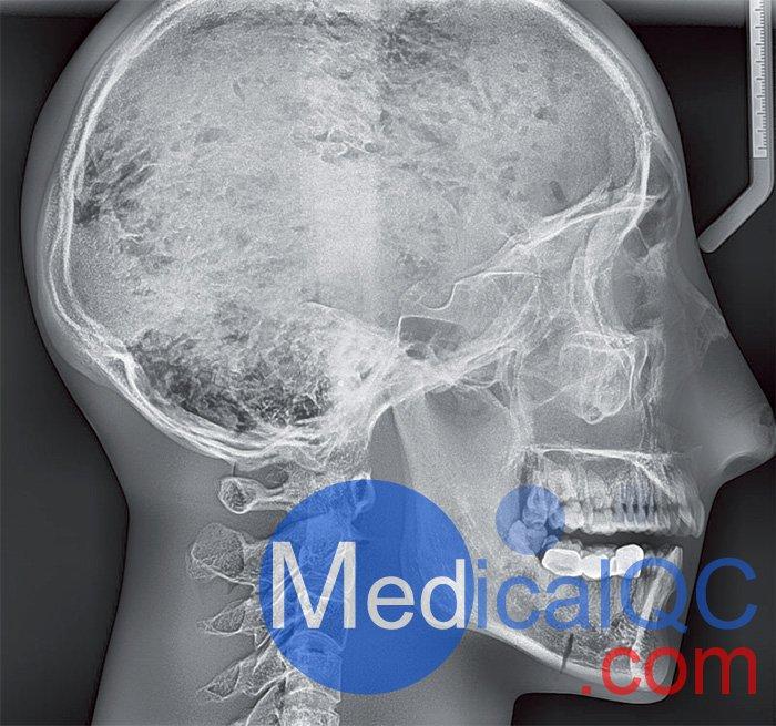 Erler Zimmer天然骨骼模体,Erler Zimmer头部模体效果