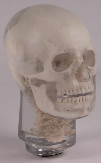 Erler Zimmer天然骨骼模体,Erler Zimmer头部模体