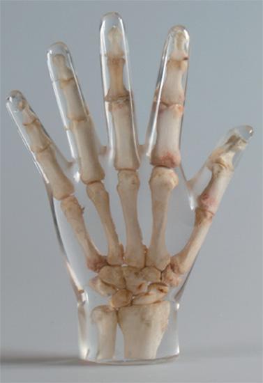 Erler Zimmer天然骨骼模体,Erler Zimmer手掌模体